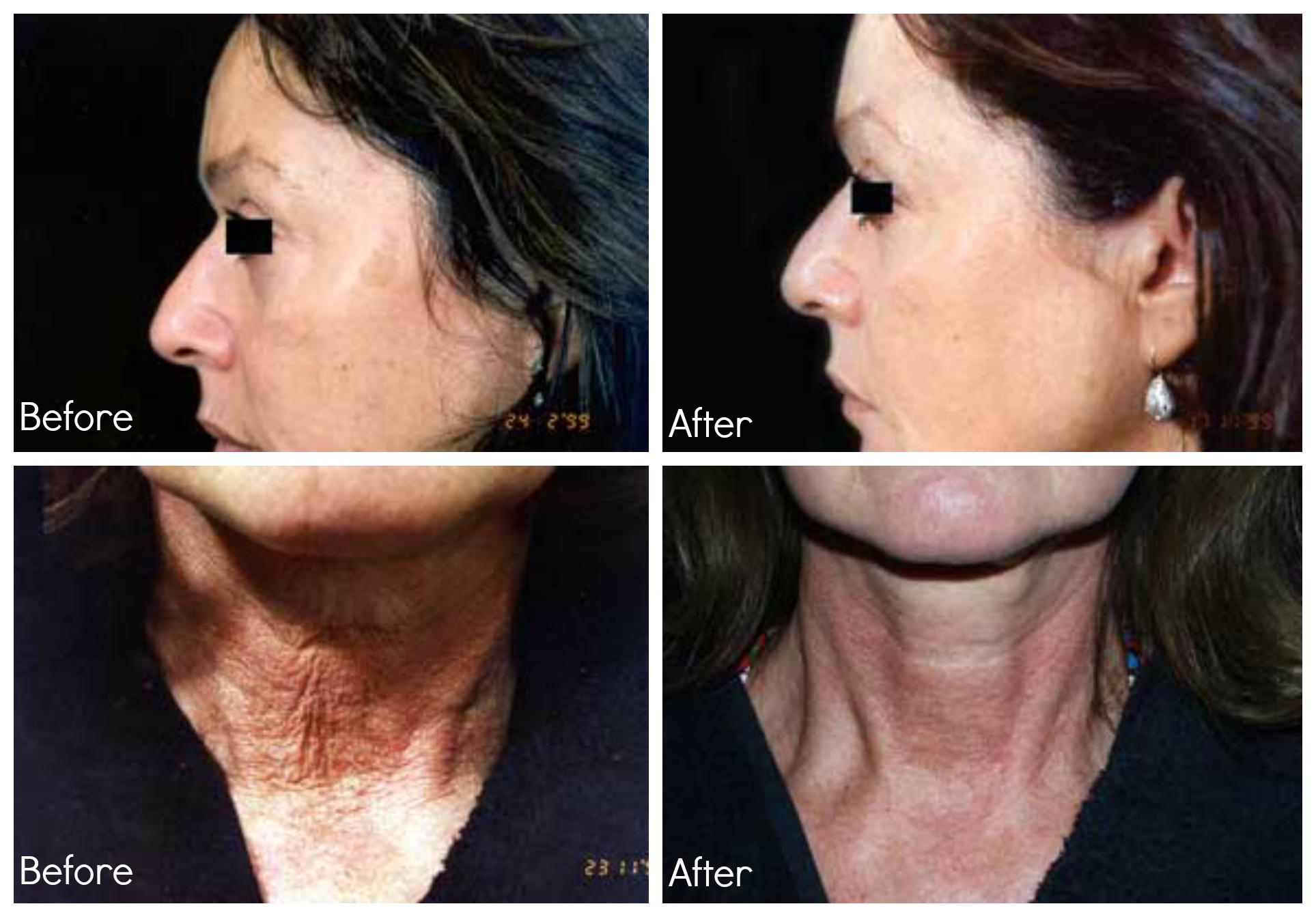 skin reguvenation